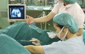 体外受精による子宮外妊娠