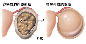 再発 卵巣 嚢腫 婦人科検診ちょーだいじ!9センチの卵巣嚢腫を2つとった話😇|P子|note